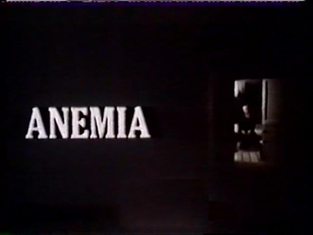 Anemia